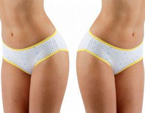 2 Pack Dámské klasické kalhotky SWEET DOT žluté